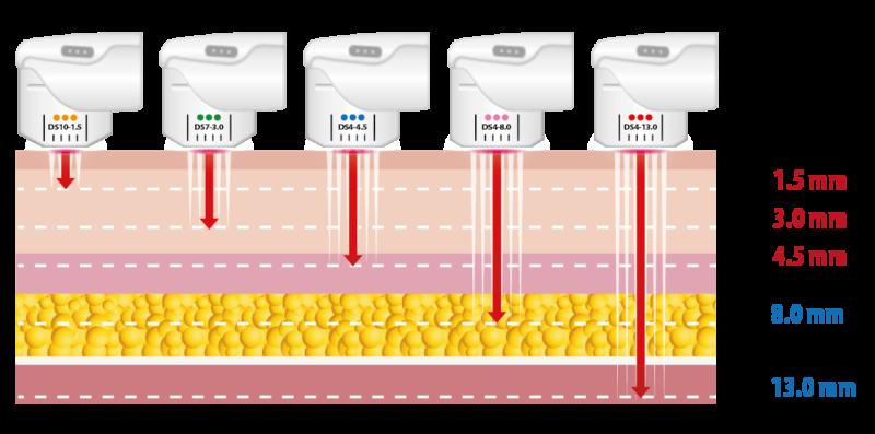 HIFU: Ultrasuoni Focalizzati ad alta intensità